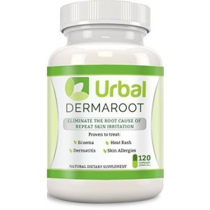 Natural Herbal Eczema Pill Treatment - Urbal Dermaroot - New Concentrated Formula - Stops Breakouts - Heals Damaged Skin - No Side Effects - 60 Tablets